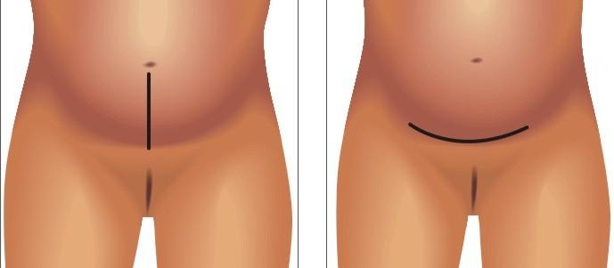 Cesarean section incesions