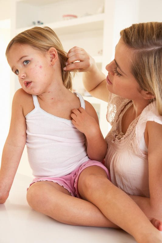 How To Remove Skin Scar Marks of Chicken Pox